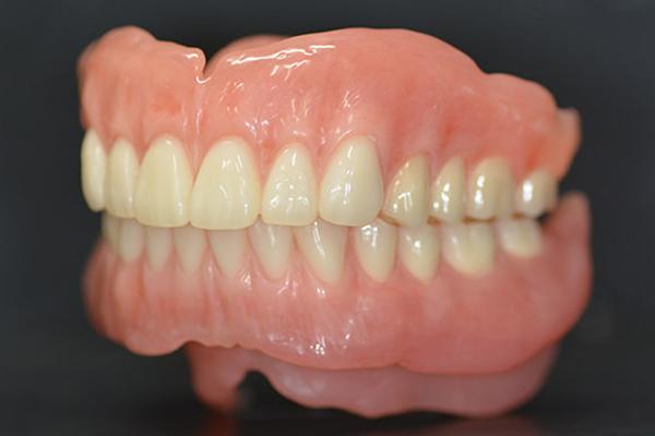 見た目が自然・噛める・ストレスフリーな入れ歯